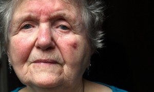 elderly woman facial fractures